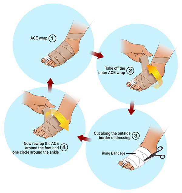 Bunion Surgery Dressing Directions